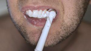 Qué utilizar para blanquear los dientes