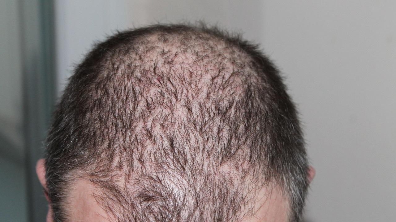 Qué utilizar para la caída del cabello   © Pixabay.com